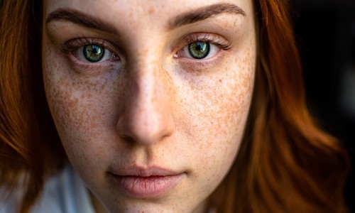 Photo of a redheaded, freckle-faced female.